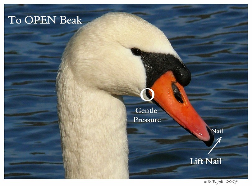 Swan Under Tongue Impaction