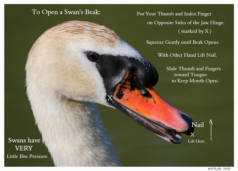 Open Swan Beak Swan Under Chin-Tongue Bulge Impaction