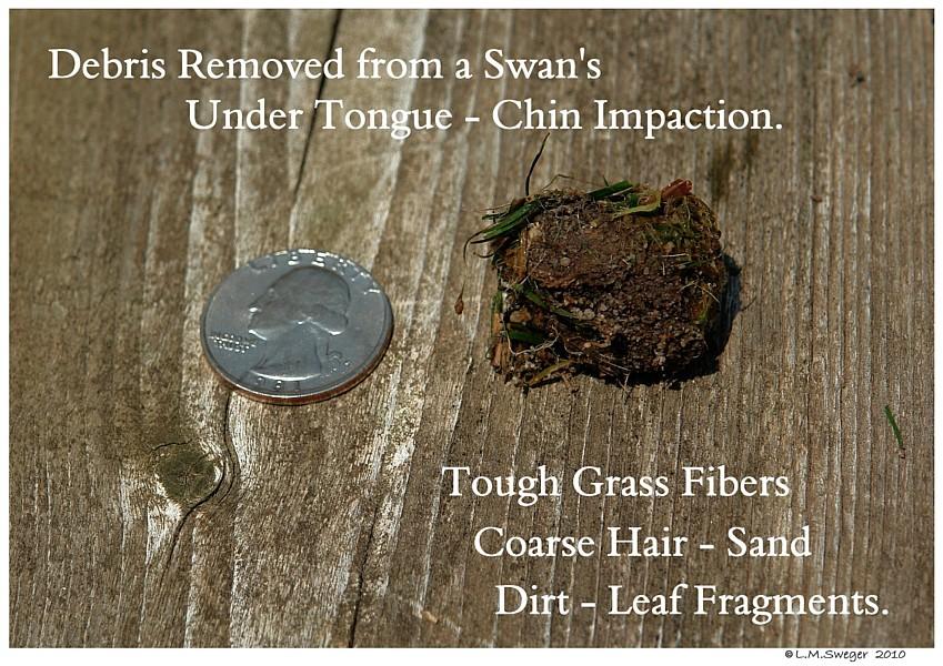 Swan Under Tongue Chin Impaction
