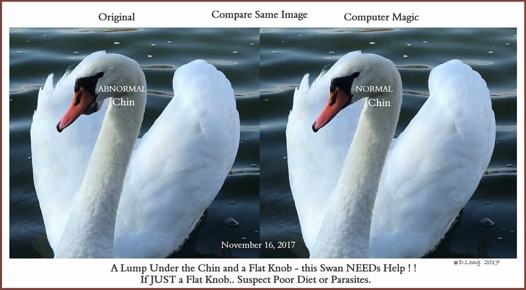 Swan Under Chin-Tongue Bulge Impaction