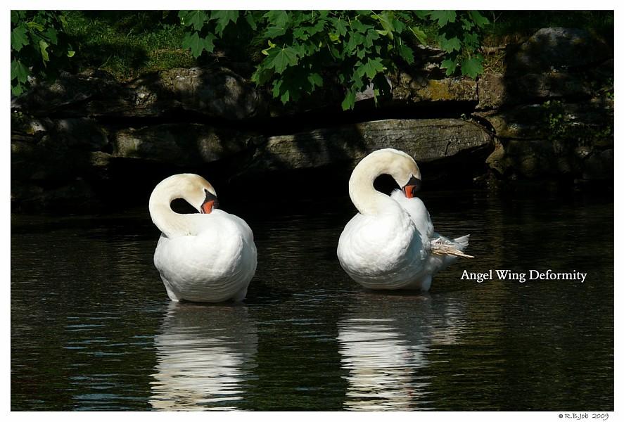 Swan Angel Wing Deformity